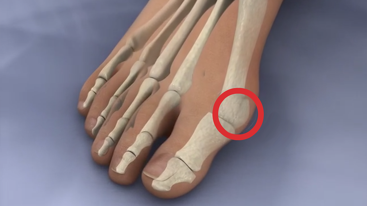 Лечение косточки на пальце